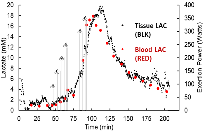 A readout of lactate measurement levels over time as provided by a continuous lactate monitor. Lactic acid levels rise during episodes of critical illness and internal bleeding, which may not be visible to the naked eye. (Photo by University of California, Irvine)