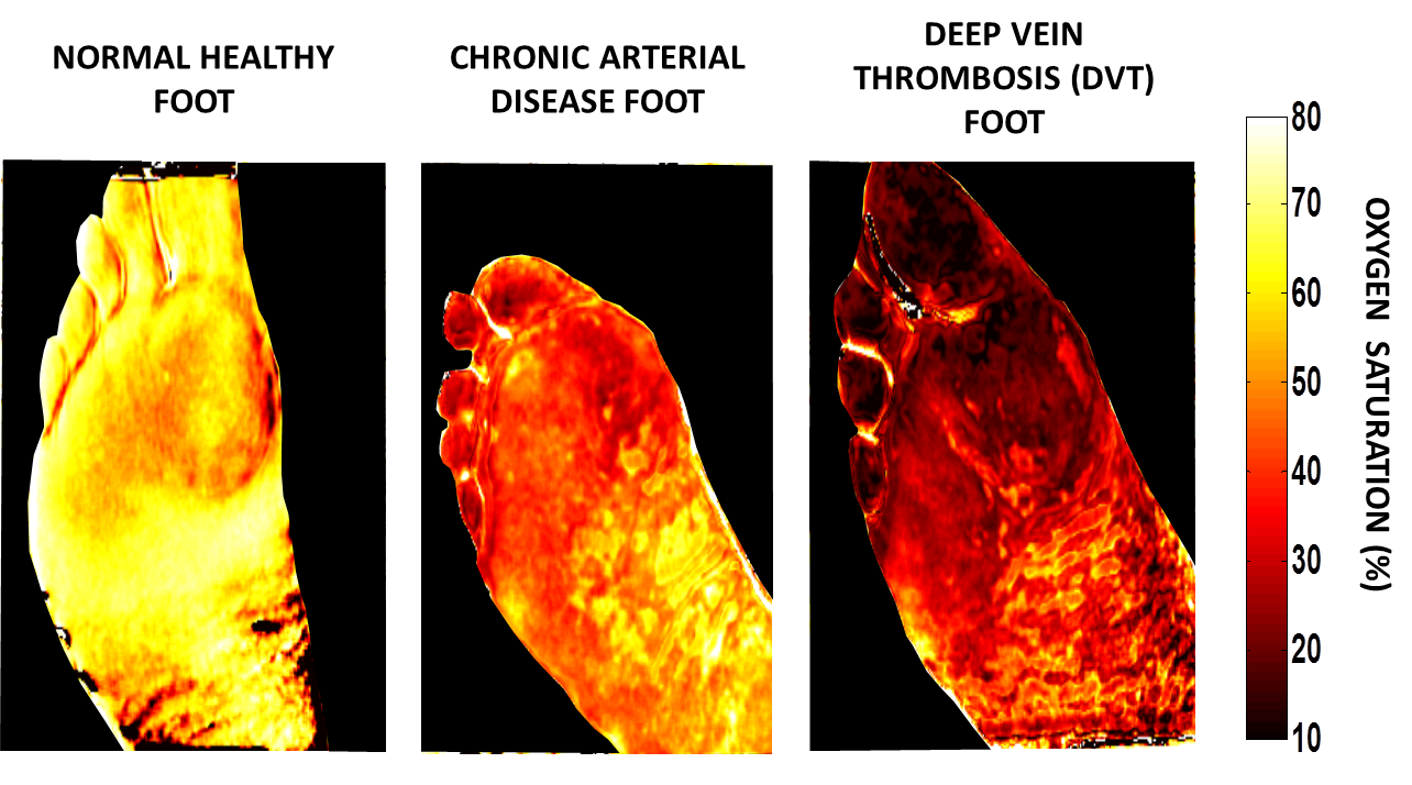 The images of an affected burn area produced by an SFDI surgical camera show parameters such as oxygen saturation, water content and total hemoglobin. (Photo by University of California, Irvine)
