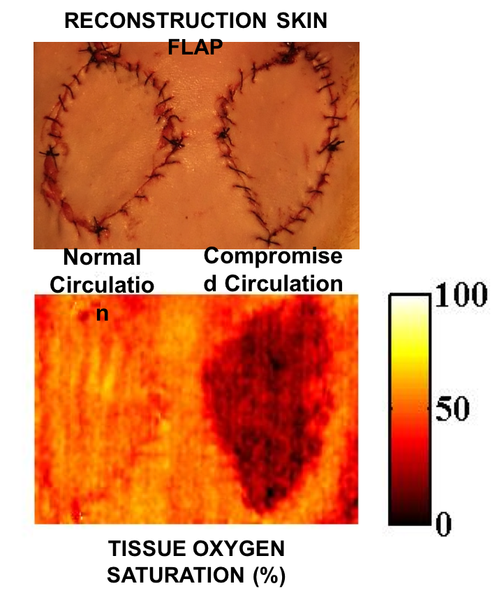 SFDI surgical camera images show reconstruction skin flaps with normal (A) and compromised (B) circulation. SFDI images enable physicians to make early and accurate assessments of tissue viability for burn and wound management, reconstructive surgery and progressive monitoring of grafts and wound healing. (Photo by University of California, Irvine)